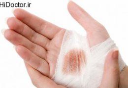 شرایط مهم برای تمیز و ضدعفونی کردن زخم
