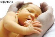 دانستنیی هایی درمورد زردی گرفتن نوزاد