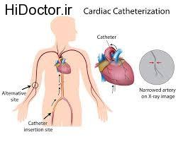 تشخیص بیماری های قلبی با کاتتریزاسیون قلبی