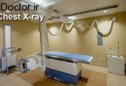 عکس قفسه سینه (Chest X- Reay)