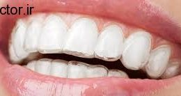 نگرانی برای دندان های نوجوانان