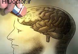 شیوه های درمانی نوین برای رفع آلزایمر