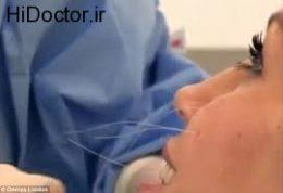 چهره های زیبا با کمک جراحی زیبایی