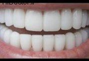 روشی موثر برای سفید کردن دندان