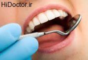 موادی جدید برای پر کردن دندان