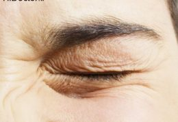 توصیه های موثر برای رفع پرش پلک چشم