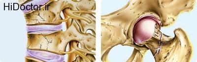 شکستگی استخوان و این آسیب ها