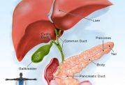 نشانه های بارز برای سرطان لوزالمعده