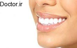 دو روش ساده برای سفید شدن دندان
