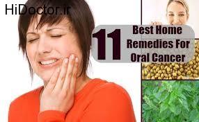 مهار بروز سرطان در دهان