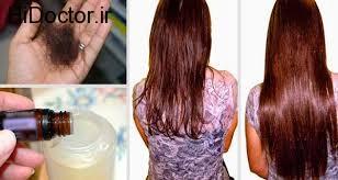 پیشگیری از ریزش مو با این سه ماده طبیعی