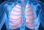 اهمیت فعالیت ورزشی برای سلامتی ریه ها