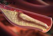 برطرف کردن لخته خون با روش های تغذیه ای