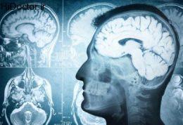 آلزایمر دشمن خاطرات نیست