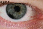 عمده ترین بیماری های چشم