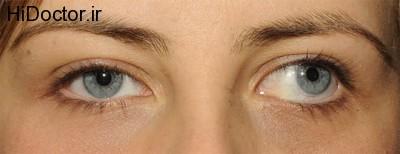 سوالاتی در مورد انحراف چشم