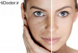 عارضه پوستی شایع برای صورت