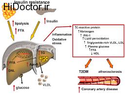 افزایش  ریسک امراض کبدی به علت دیابت نوع 2