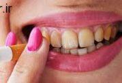 سیگار کشیدن باعث به وجود آمدن مشکلات  دهان می شود