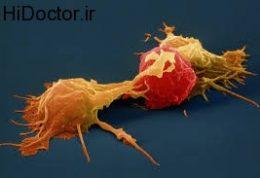 التهاب ناشی از چاقی و دیابت نوع 2
