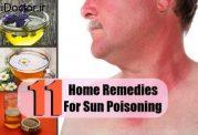 درمان های مختلف برای رفع مسمومیت با نور خورشید