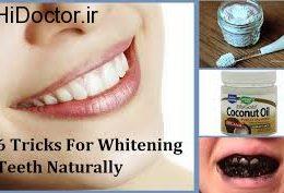 توصیه هایی برای سفید کردن دندان