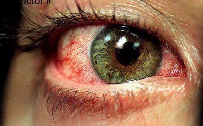 قرمز شدن دیدگان با این موارد