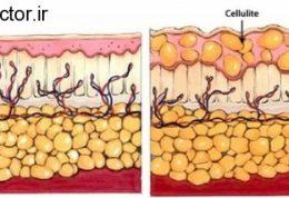 سلولیت و این روش های درمانی