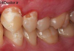 پوسیده شدن دندان و این راهکارها