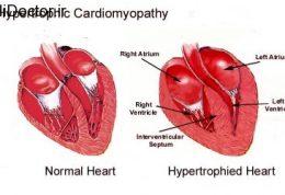 پیشگیری از عارضه های قلبی در افراد ورزشکار