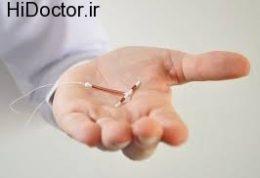 آی- یو- دی IUD و جلوگیری از بارداری