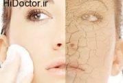 دلایل خشک شدن پوست  و درمان آن