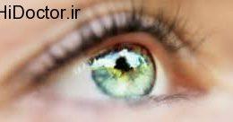 مواردی که برای سلامتی چشم مضر است