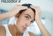 روش معالجه ریزش مو