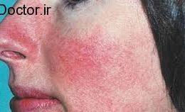 رعایت بهداشت برای جلوگیری ازسرخی پوست