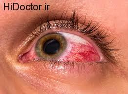 با انواع بیماری های چشم آشنا شوید