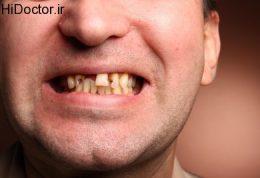 پوسیدگی دندان با این عوامل