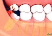 دندان عقل وعوارض جانبی مربوط به آن