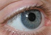 درمان قطعی آب سیاه چشم کشف شد