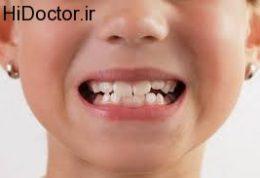 از دندان های شیری محافظت کنید
