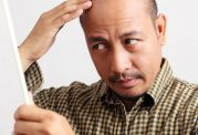 درمان جدید برای مبتلایان به آلوپسی آرهآتا