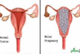 عوارض بارداری مولار