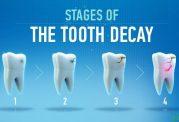 مقاومت در برابر پوسیده شدن دندان