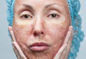 آلفالیپوئیک اسید سلاحی بی همتا برای مبارزه با پیری