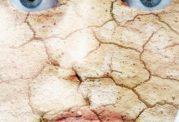 مرطوب کننده های مورد استفاده برای پوست خشک