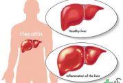 اخبار خوشحال کننده درمورد درمان هپاتیت نوع C