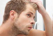 اثرات منفی شغل بر مو