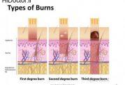 توضیحاتی پیرامون سوختگی پوست