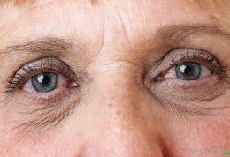 آیا آلفالیپوئیک اسید خوراکی  در افزایش سلامت پوست موثر است