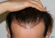 برای کاشت مو سن را در نظر بگیرید
